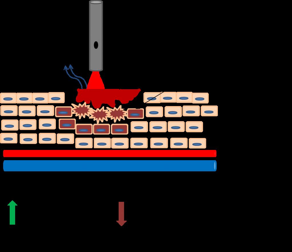 Schema der Wirkung einer Bestrahlung mit Softlaser: Die eintreffende Lichtstrahlung aktiviert den Stoffwechsel der Zellen.